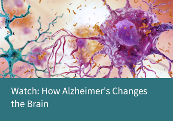 Watch: How Alzheimer's Changes the Brain