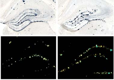 Amyloid imaging from mouse brain samples; see caption