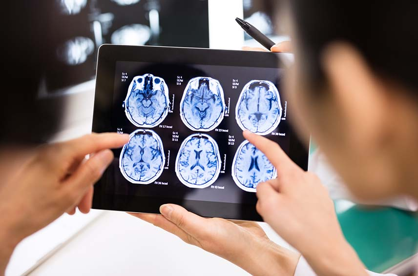 Doctors looking at brain scans on tablet