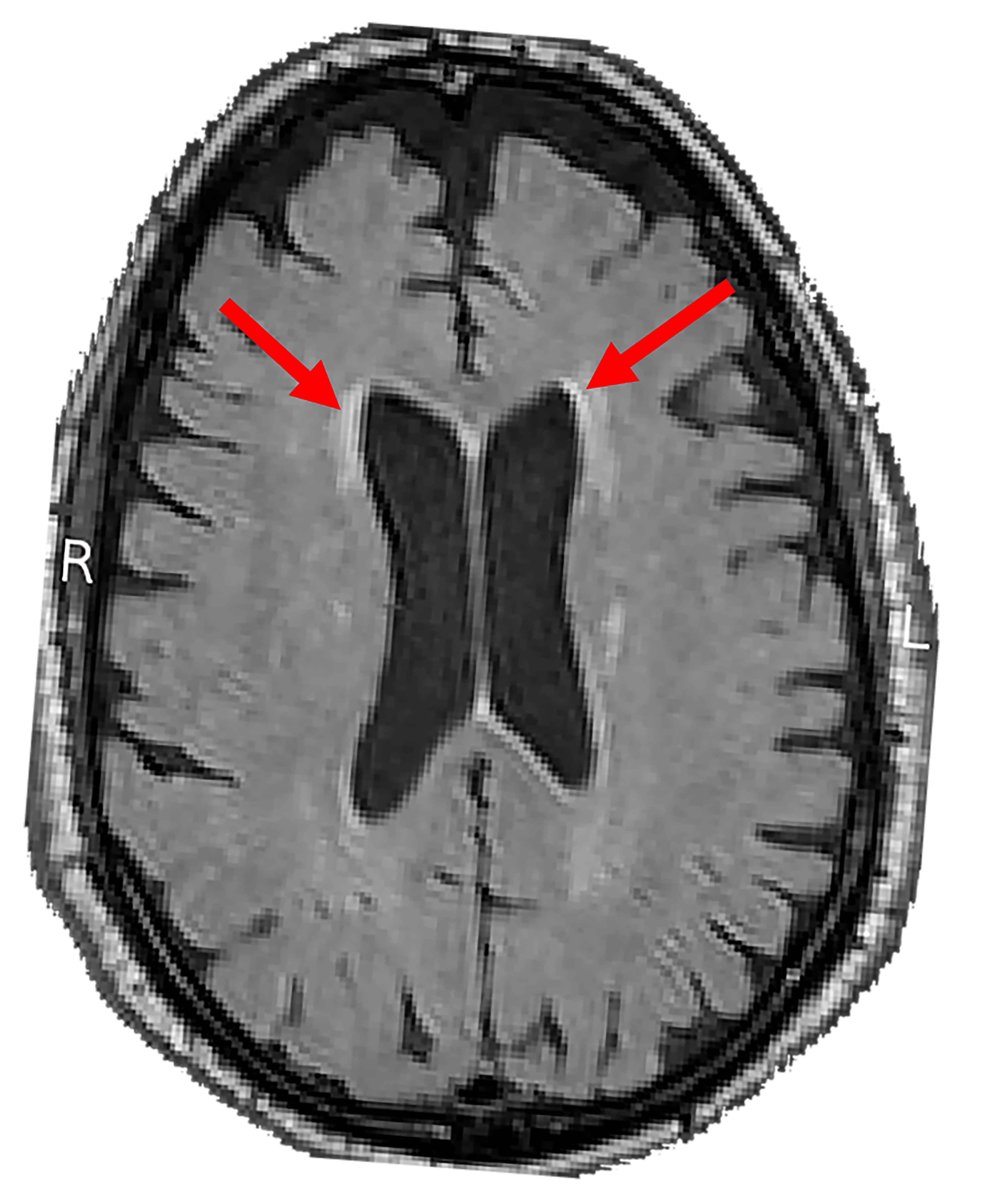NIH funded study found link between blood pressure and white matter lesions. Arrows highlight examples of lesions seen on magnetic resonance imaging brain scans.