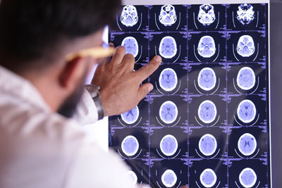 Doctor looking at tomography images of the brain.