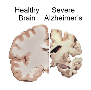 brain_slices_alzheimers_0.jpg