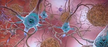 Brain cells with plaques and tangles typical in Alzheimer's disease