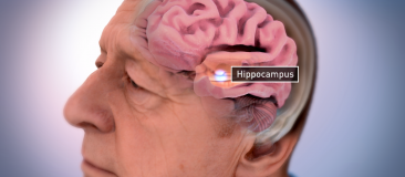 Cross-section of a shrinking brain,  with the hippocampus labeled
