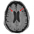 brain scan - final SPRINT MIND MRI