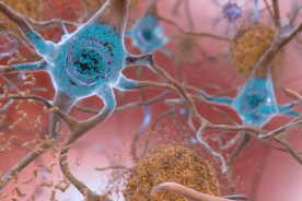 beta-amyloid plaques and tau tangles in the brain