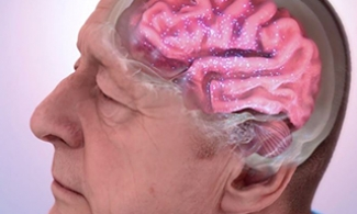 Animation showing an older man's brain